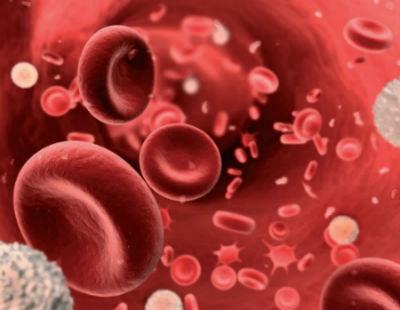 anemia en sangre
