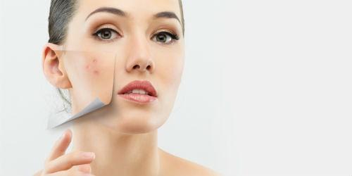 Causas manchas en la piel