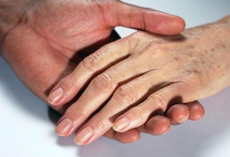 Manchas blancas en la piel con la edad