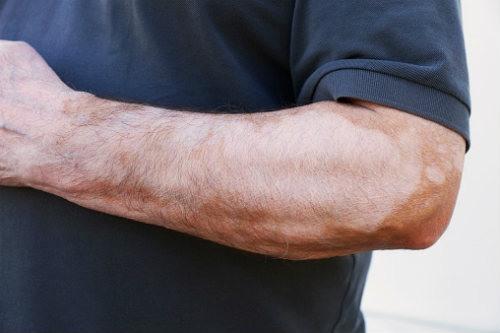 Que la crema de la pigmentación de la piel sobre la persona