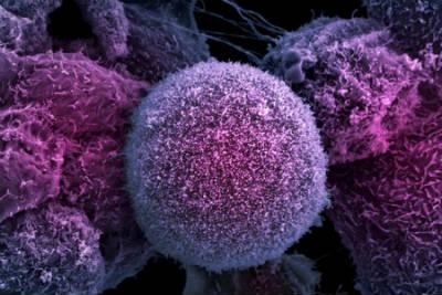 linfocitos altos