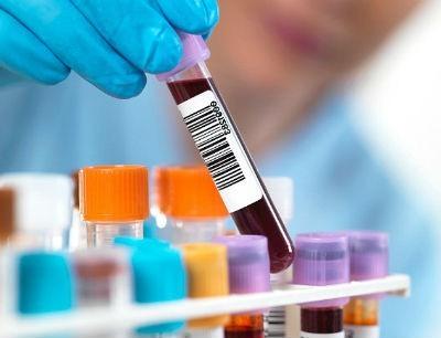 Como bajar el nivel de hematocrito