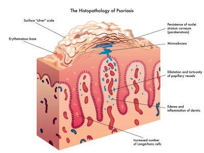 Psoriasis causas