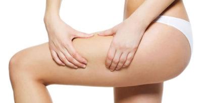 Relacion entre obesidad y celulitis