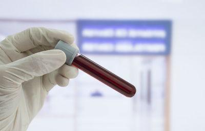 Sintomas de hematocrito bajo