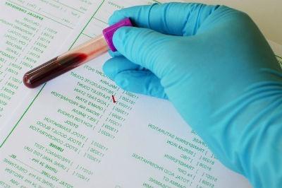Trombocitosis plaquetas altas en sangre