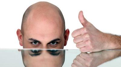 Que es la alopecia androgenica