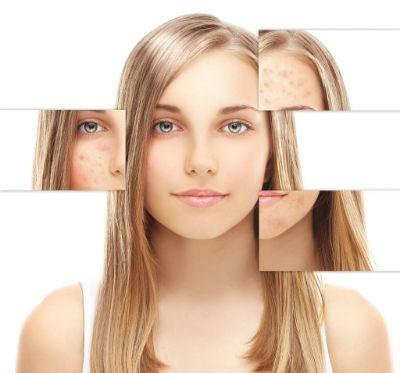 Avances en medicina estetica facial