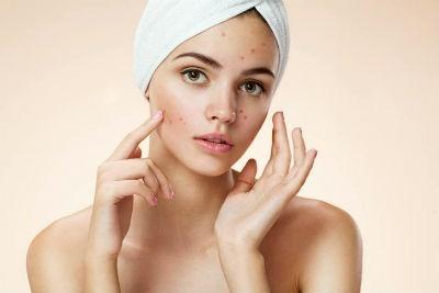 Alimentos para evitar acne