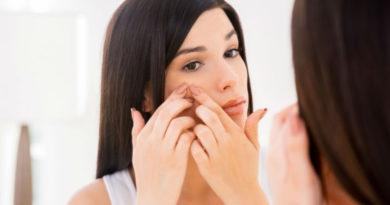 Mejores alimentos para evitar y tratar el acne