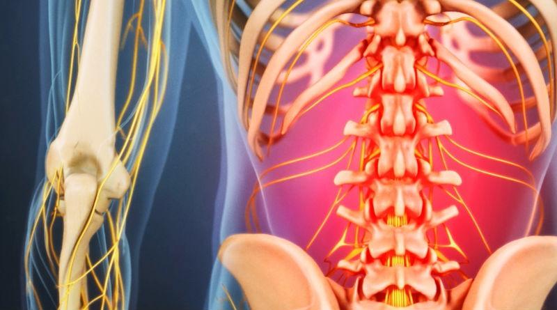 Evitar lesiones lumbares