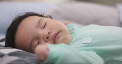 Anemia hemolitica del recien nacido