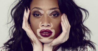que es vitiligo