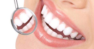 Diferencias Entre Protesis Dentales E Implantes Dentales