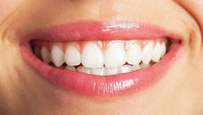 Implantes dentales ventajas