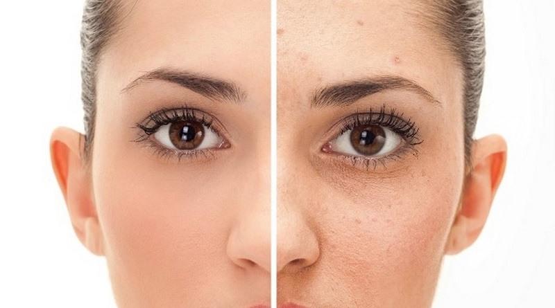 Como eliminar las manchas en la piel