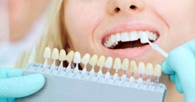Las carillas dentales como solucion para tu dentadura