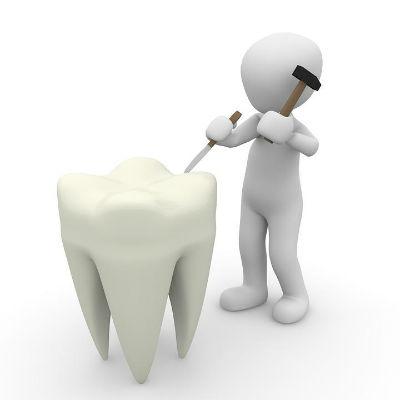 Proceso y ventajas de la endodoncia