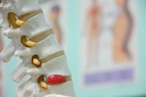 problemas de las vertebras