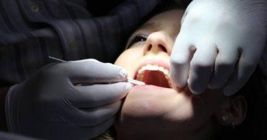 Tratamiento de carillas dentales